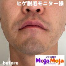 メンズ脱毛MojaMojaのヒゲ脱毛モニター様衝撃の変化!たった3か月で肌も綺麗に!