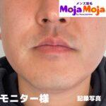 ヒゲ脱毛って本当に減るの? 名古屋市亀島駅5分-メンズ脱毛MojaMoja